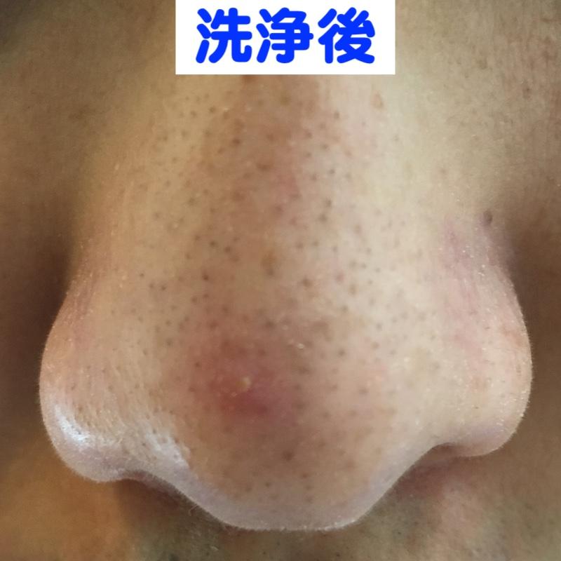 ビオレ洗顔ジェル洗浄後の鼻の毛穴