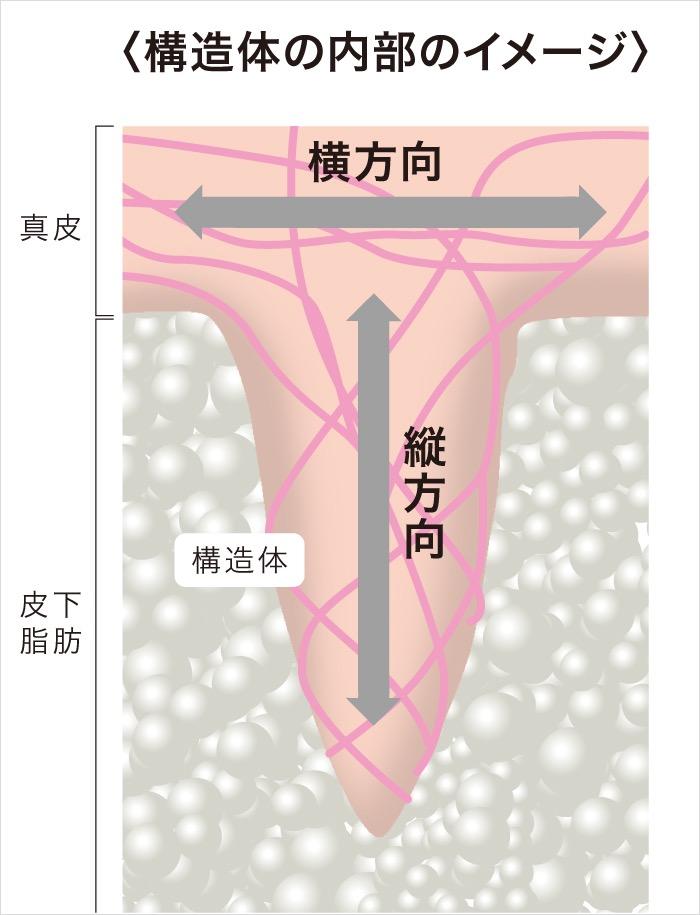 たるみの原因の構造体模式図2