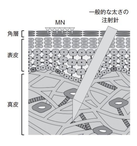 マイクロニードルパッチと注射針
