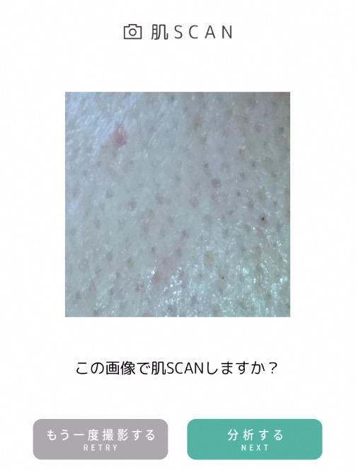 オプチューンの肌スキャン画像